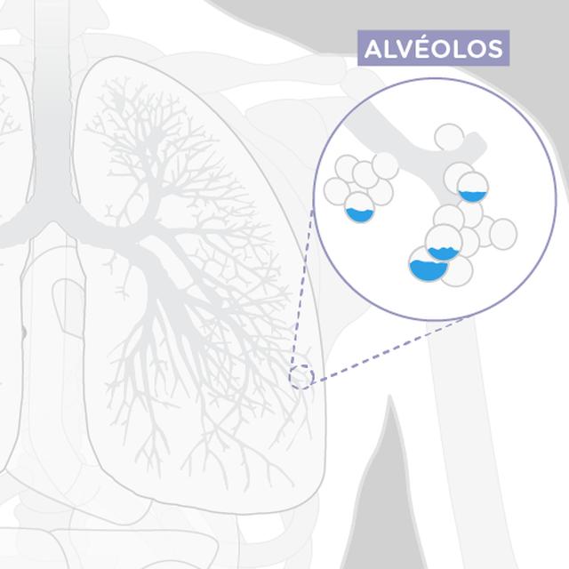 Um desenho mostrando alvéolos cheios de líquido nos pulmões