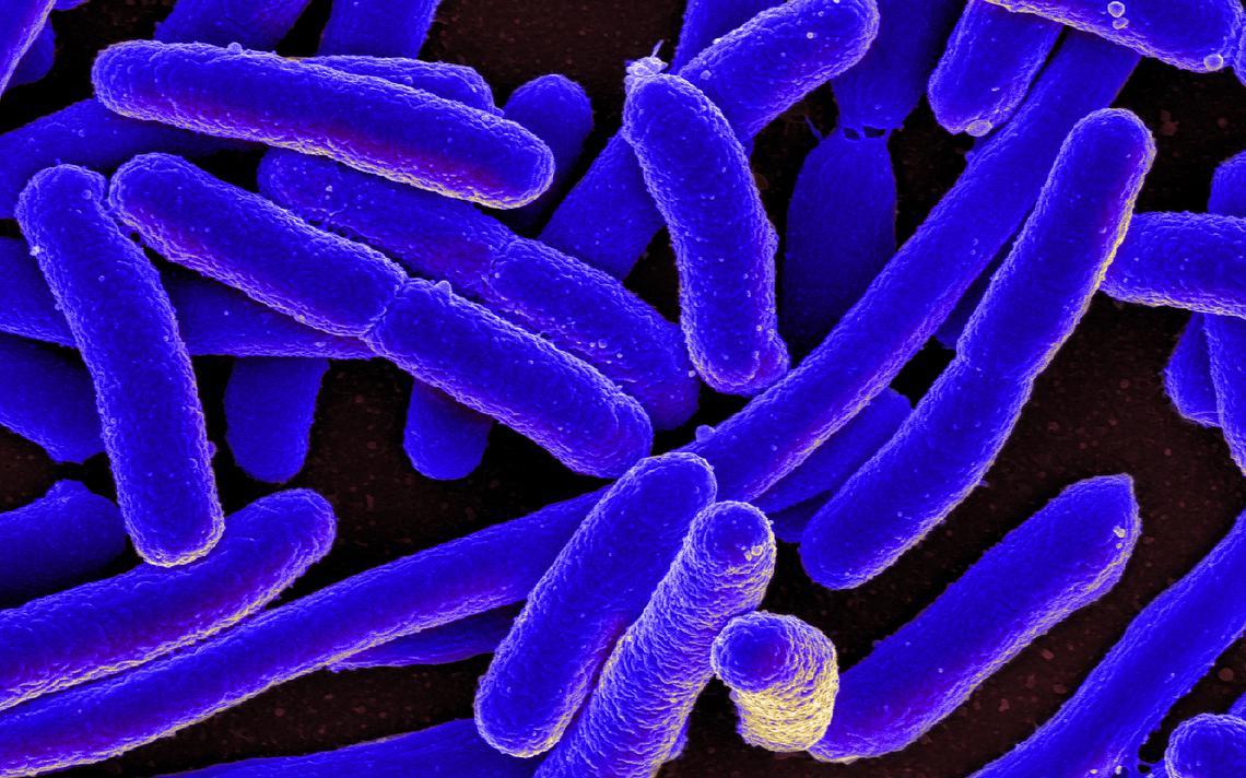 Cultura das bactérias não artificiais Escheria coli