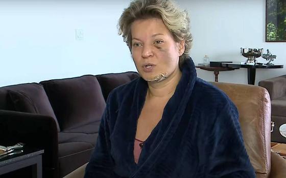 Deputada relata fraturas e aciona polícia para apurar agressão