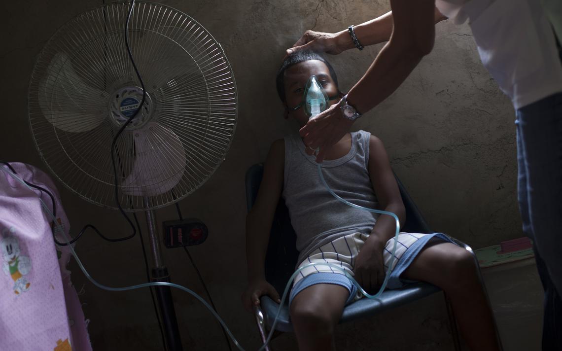 Criança trata problema respiratório