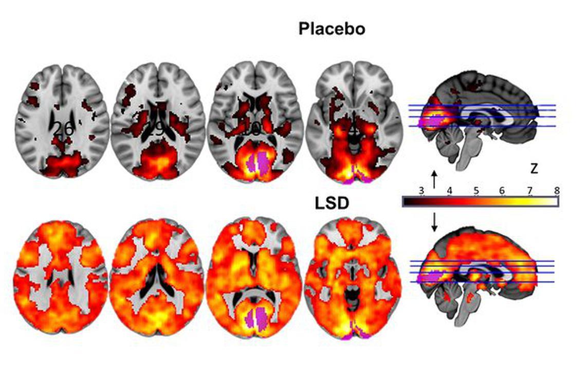 Imagens mostram cérebro sob efeito de placebo e LSD