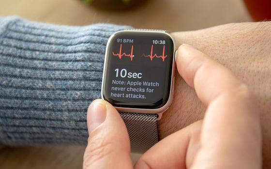 A liberação da Anvisa que amplia as funções dos smartwatches
